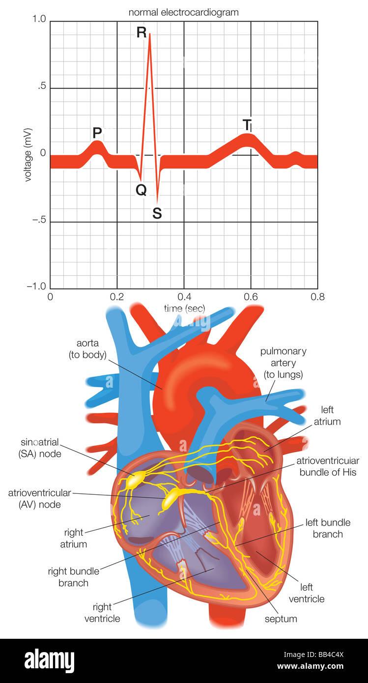 Elektrokardiogramm der alternierenden Kontraktionen während ein ...
