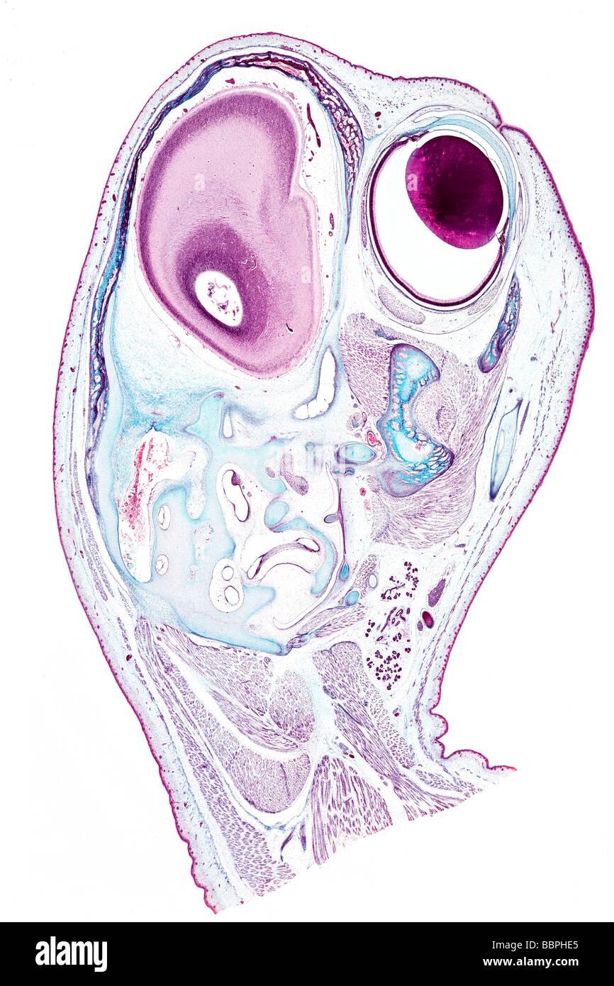 Fetus Head Stockfotos & Fetus Head Bilder - Alamy