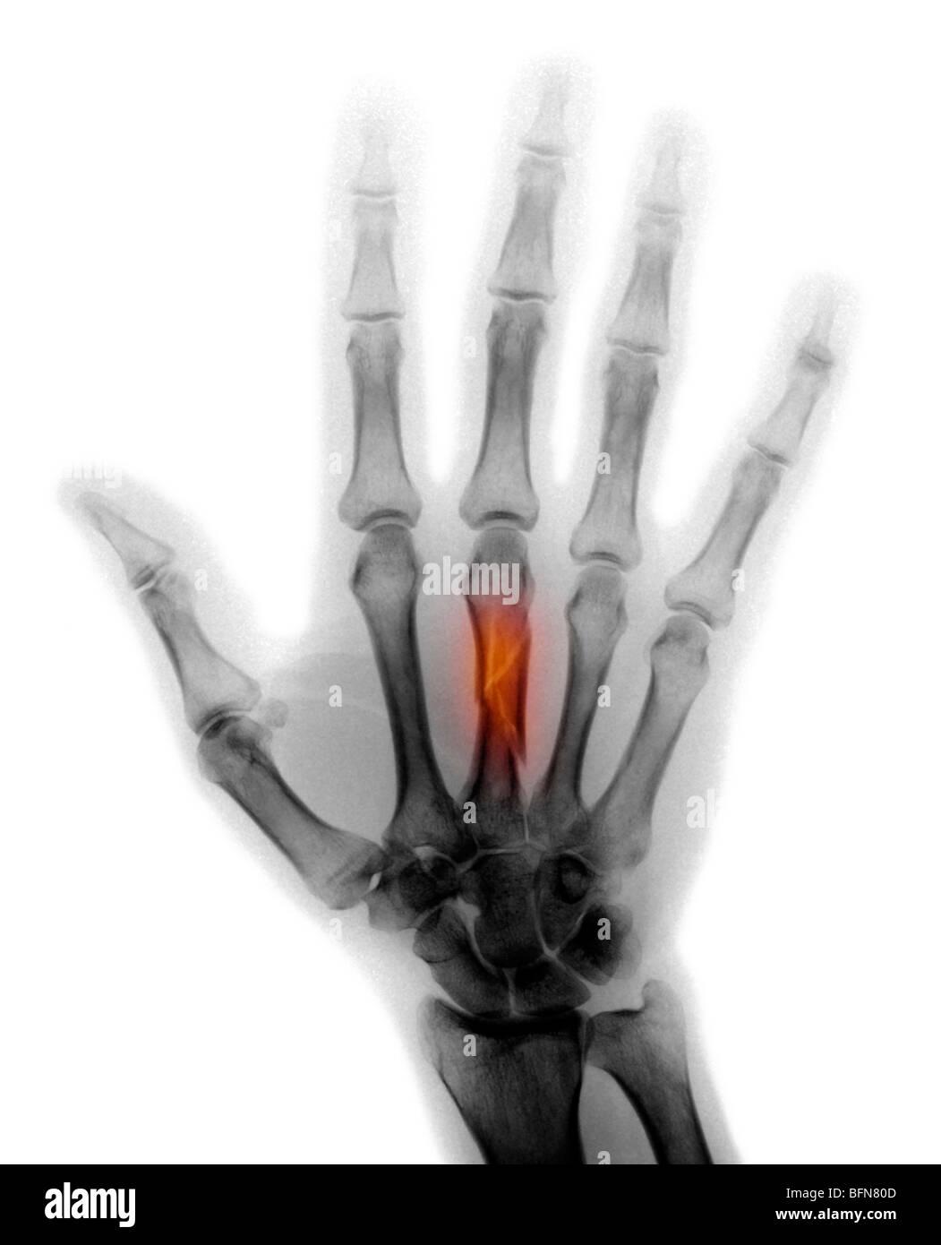 Mittelhandknochen gebrochen