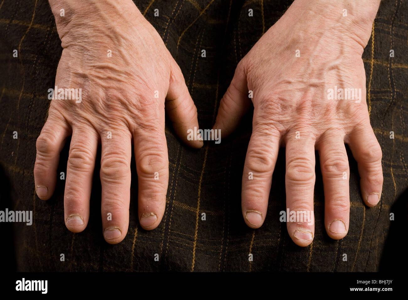 Nahaufnahme von einer alten Frau Hände Stockbild