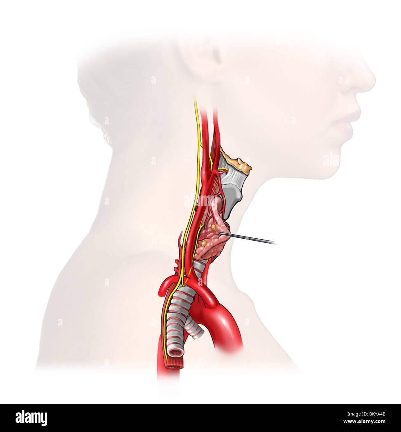 Neck Arteries Stockfotos & Neck Arteries Bilder - Seite 2 - Alamy