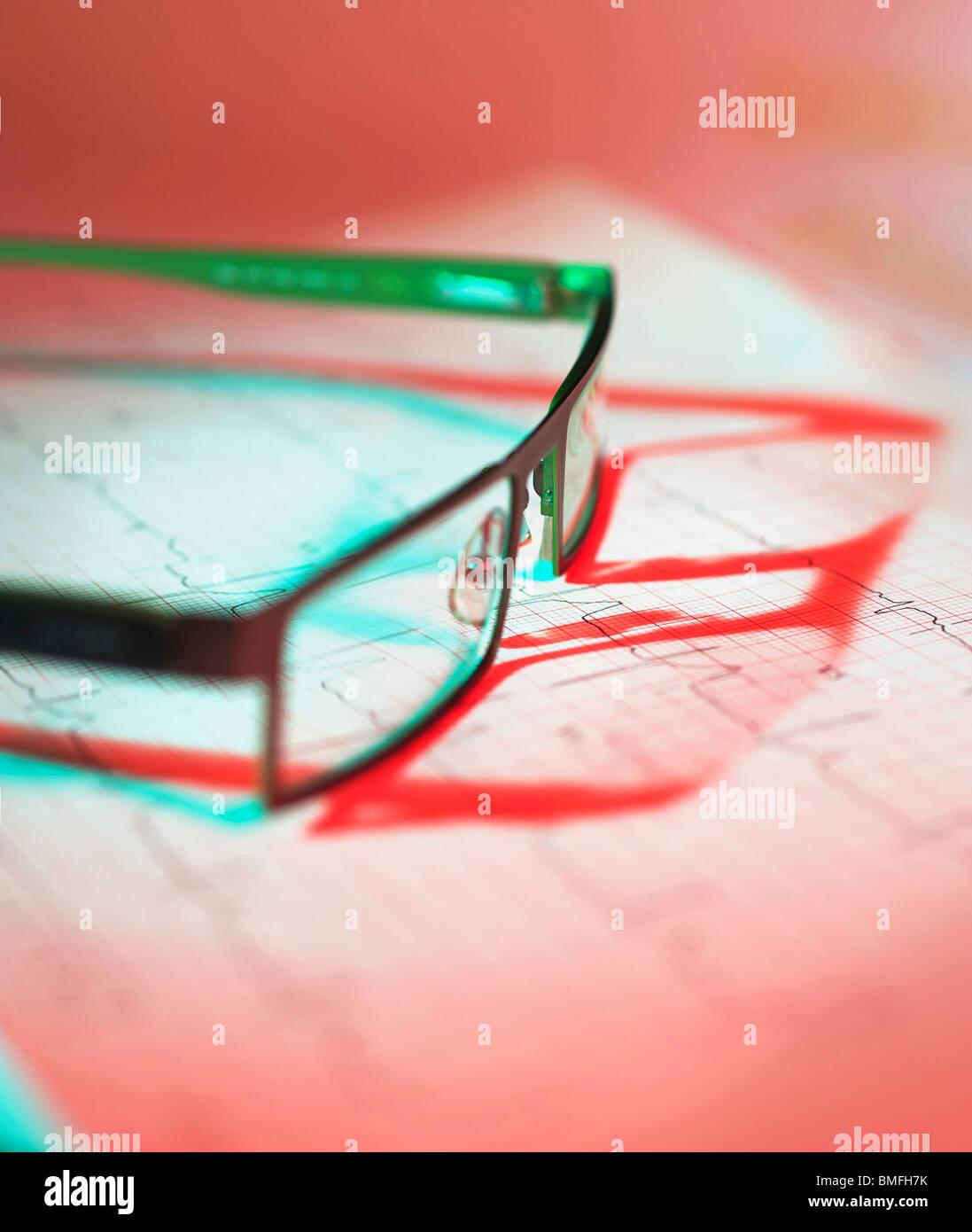 Brille auf ECG Ergebnisse wirft einen Schatten mit dezenten blauen und roten Beleuchtung liegen Stockbild