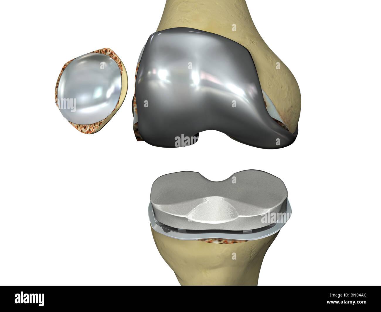 Dieses 3D Bild zeigt die Prothesen auf dem Platz in einer Knie-Totalprothese. Stockbild