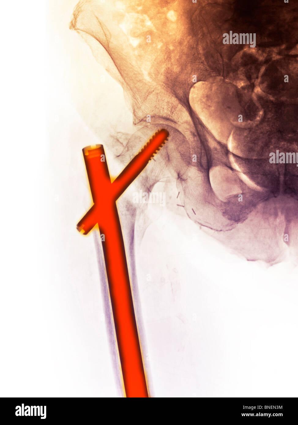 Hip Röntgen zeigt Hüftfraktur Stockfoto, Bild: 30442040 - Alamy