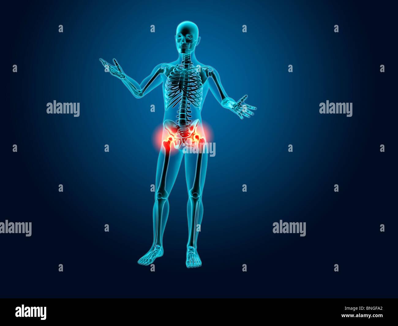 Röntgenblick eines menschlichen Skeletts mit Hüftgelenk Entzündung ...