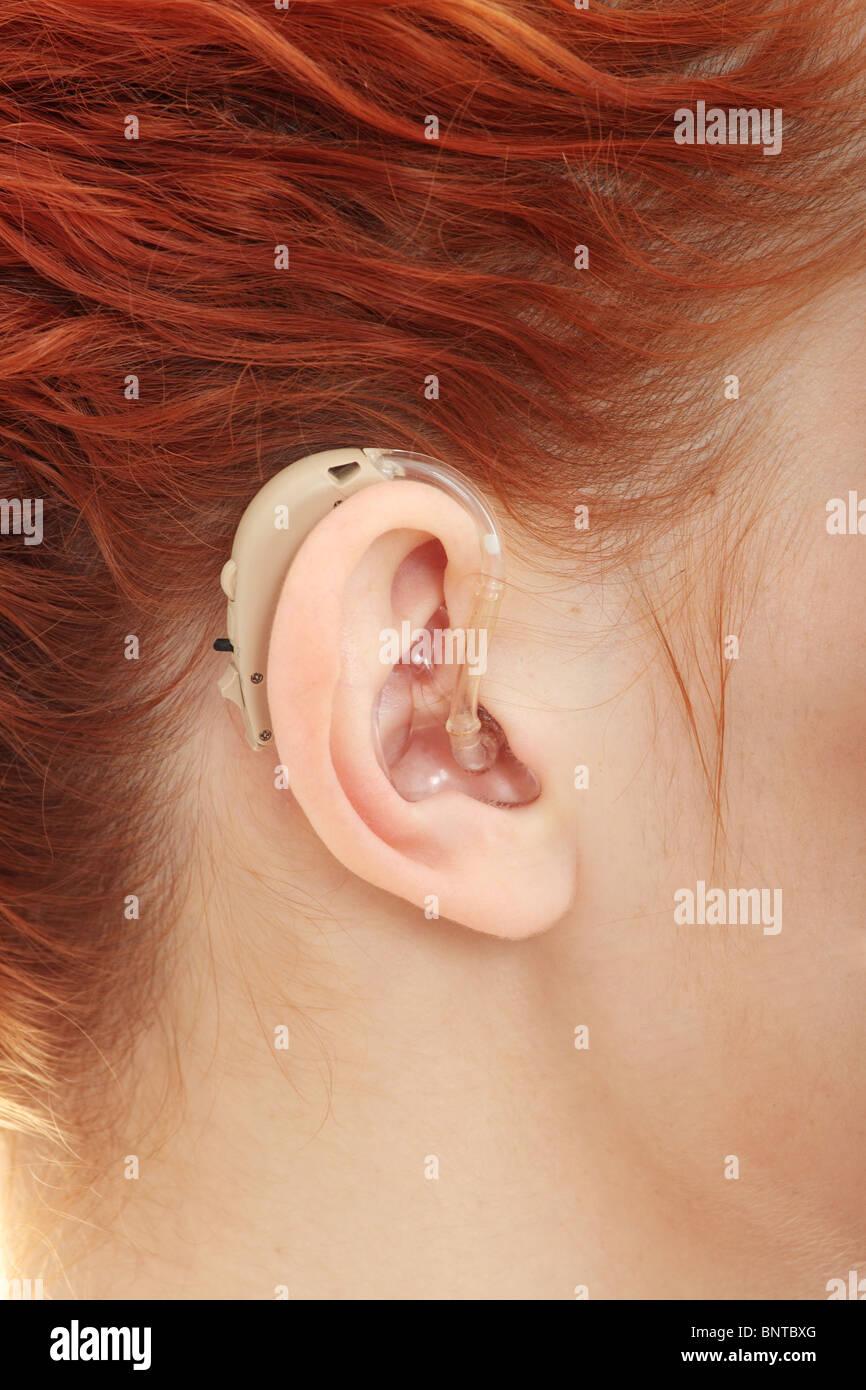 Klangkörper von Hörgeräten