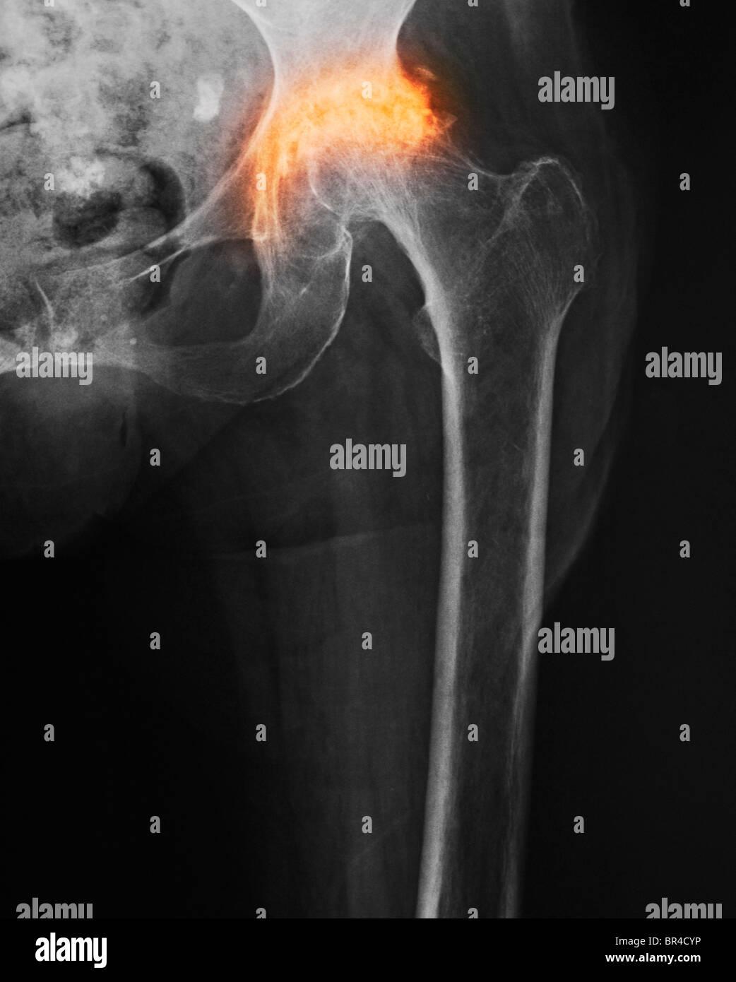 x-ray zeigt schwere Arthrose der Hüfte eine 85-jährige Frau Stockbild