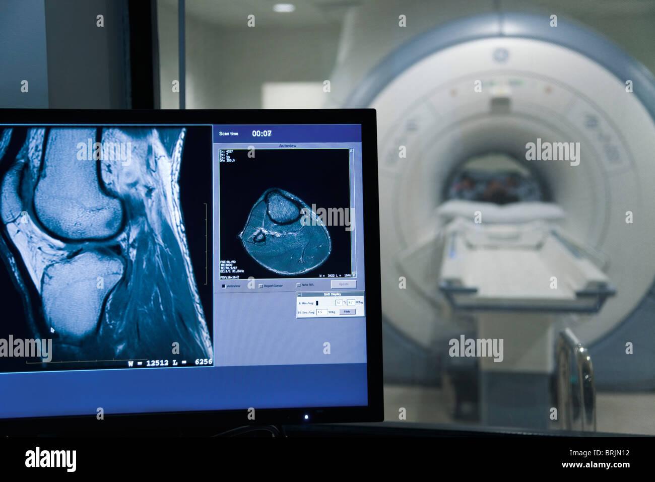 MRI scan-Ergebnis auf Computer-monitor Stockbild
