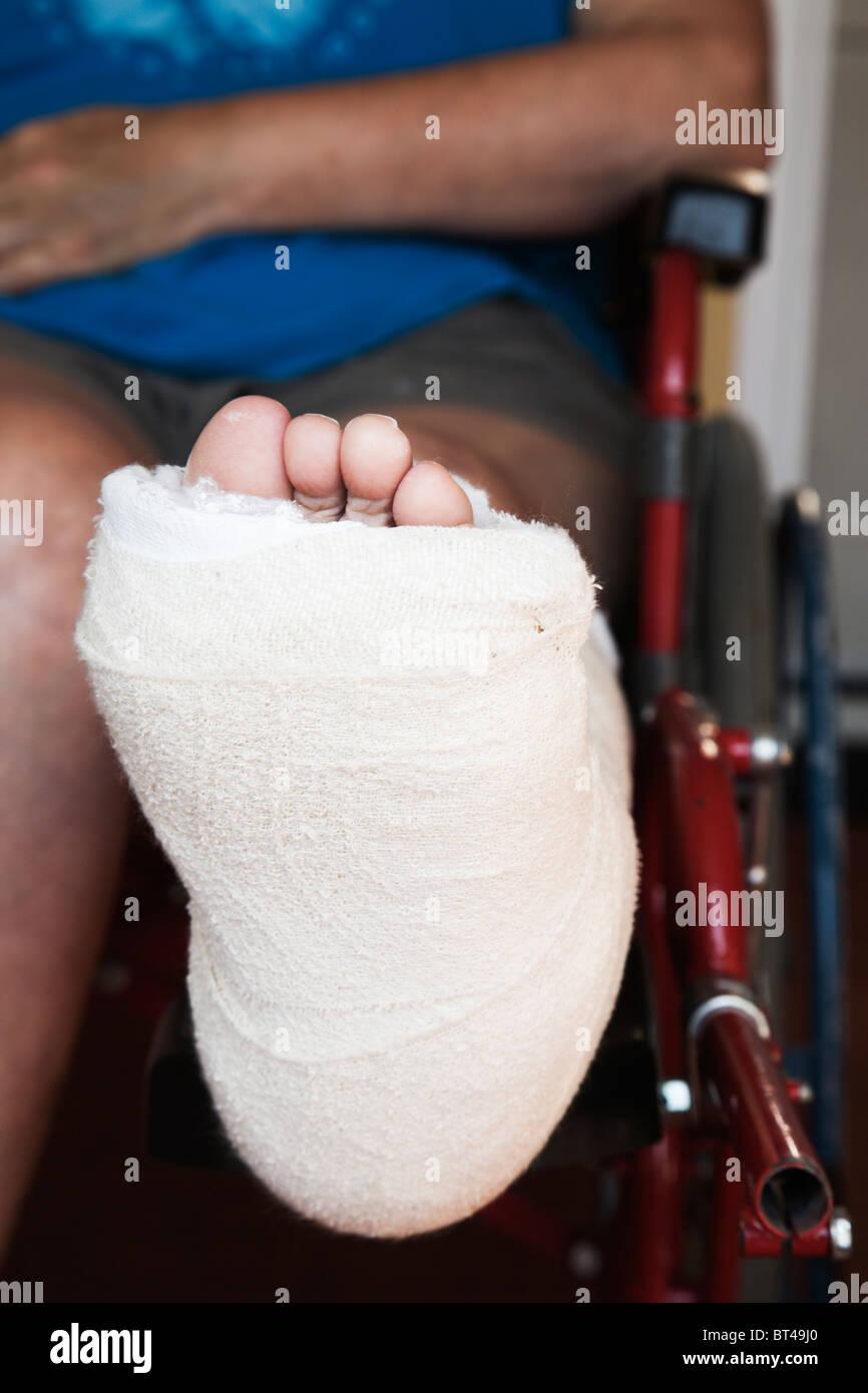 Broken Ankle Stockfotos & Broken Ankle Bilder - Alamy