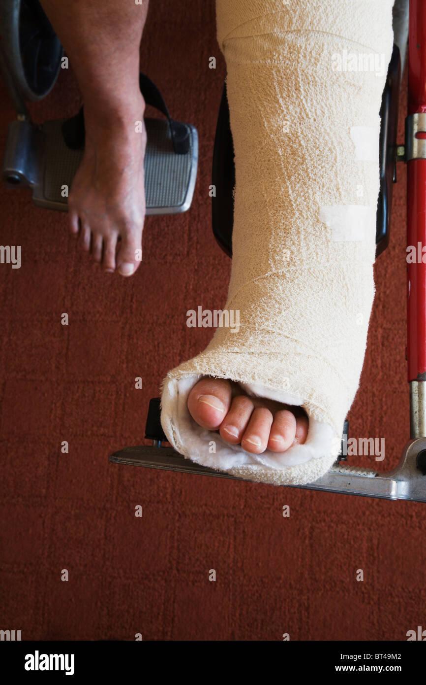 Eine Frau mit gebrochenen Knöchel Knochen gesetzt in einem ...