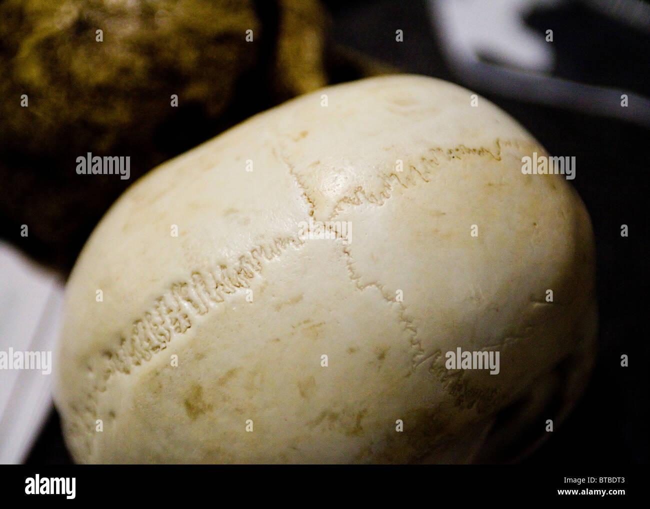 Menschlicher Schädel Nähte Stockfoto, Bild: 32214451 - Alamy