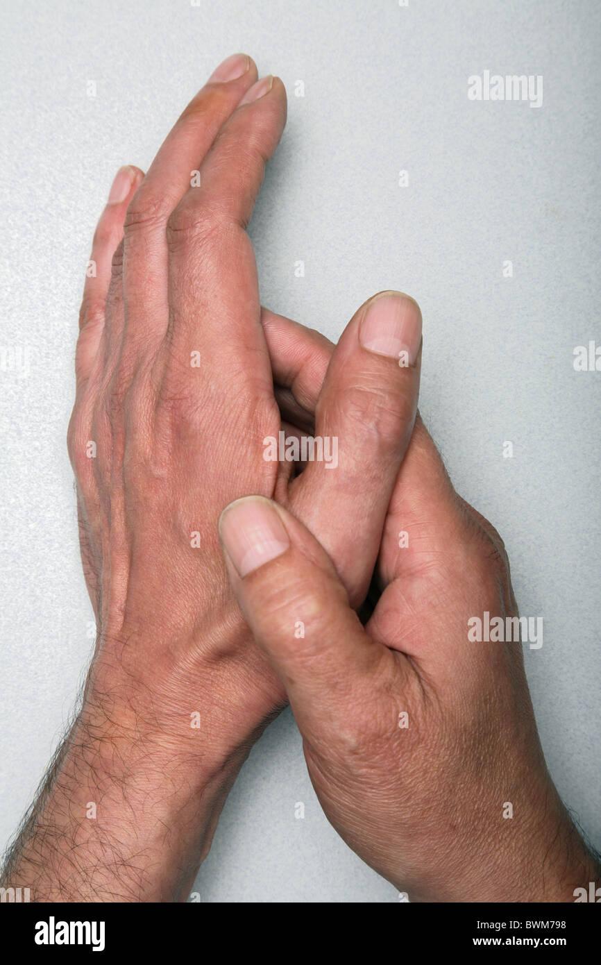 Arthritis in der Hand. Stockbild
