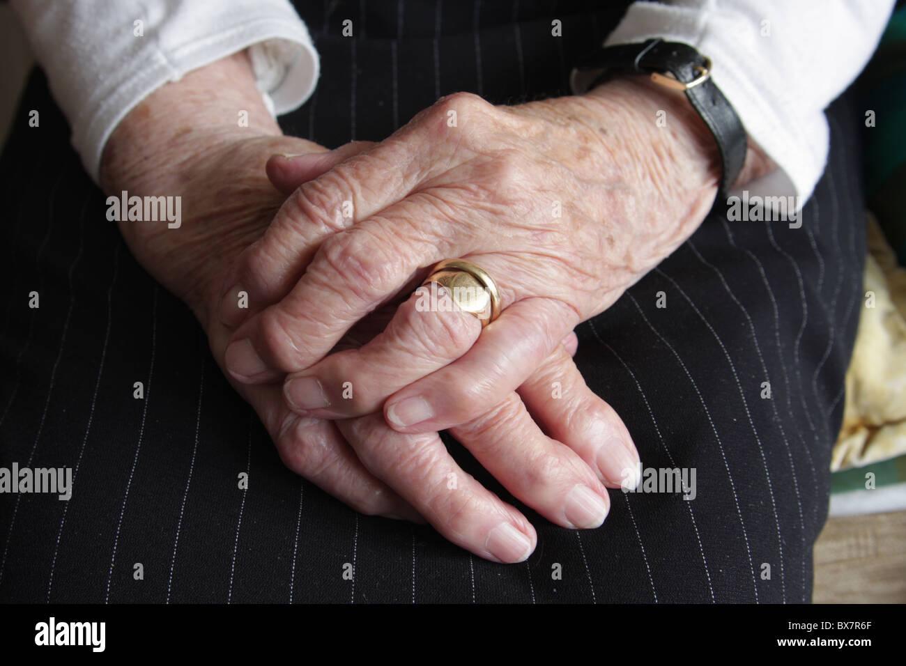 Eine ältere Womans Hände zeigen die Auswirkungen von Arthritis. Stockbild