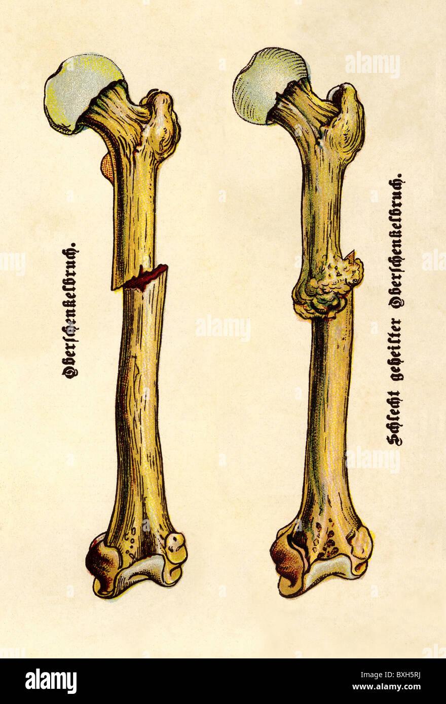 Medizin, Anatomie, Frakturen, Bruch des Oberschenkelknochens ...