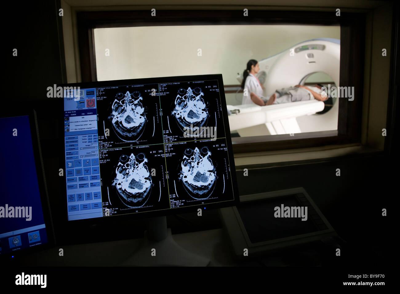 MRT-Ergebnisse auf einem computer Stockbild