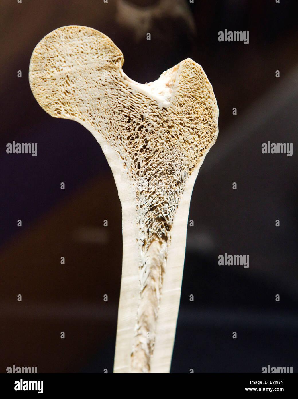 Querschnitt-Ansicht von einem menschlichen Oberschenkelknochen ...