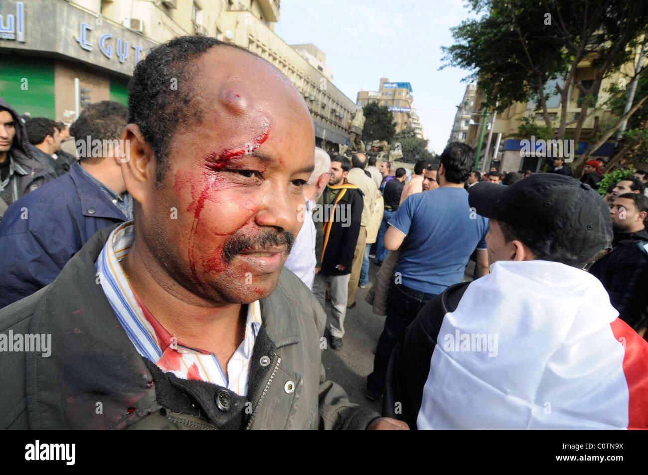 Ein Anti-Mubarak-Demonstrant verwundet durch Stein bei Zusammenstößen auf dem Tahrir-Platz am 2. Februar Stockbild