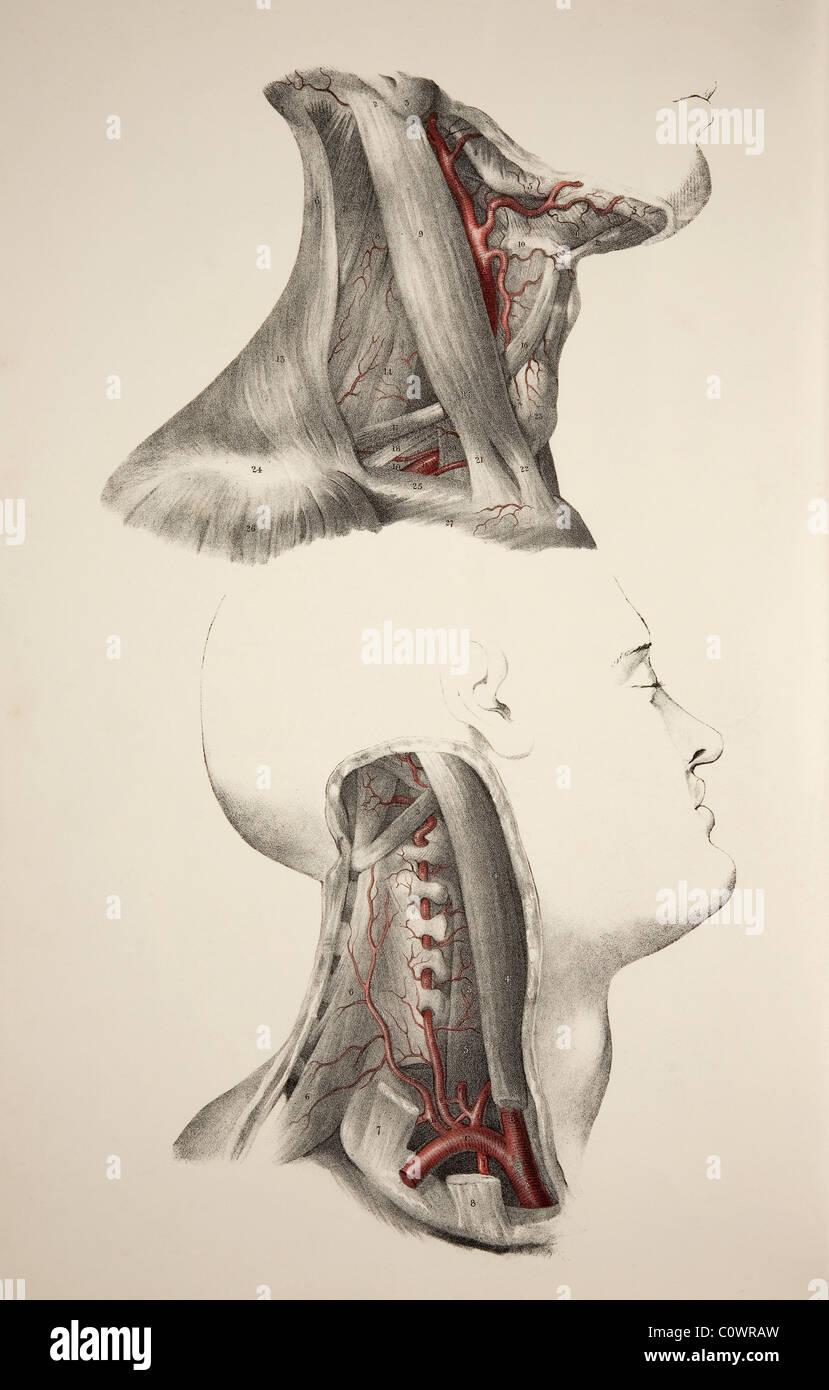 Hals-Arterien. Historische Darstellung, die beiden Bilder des ...