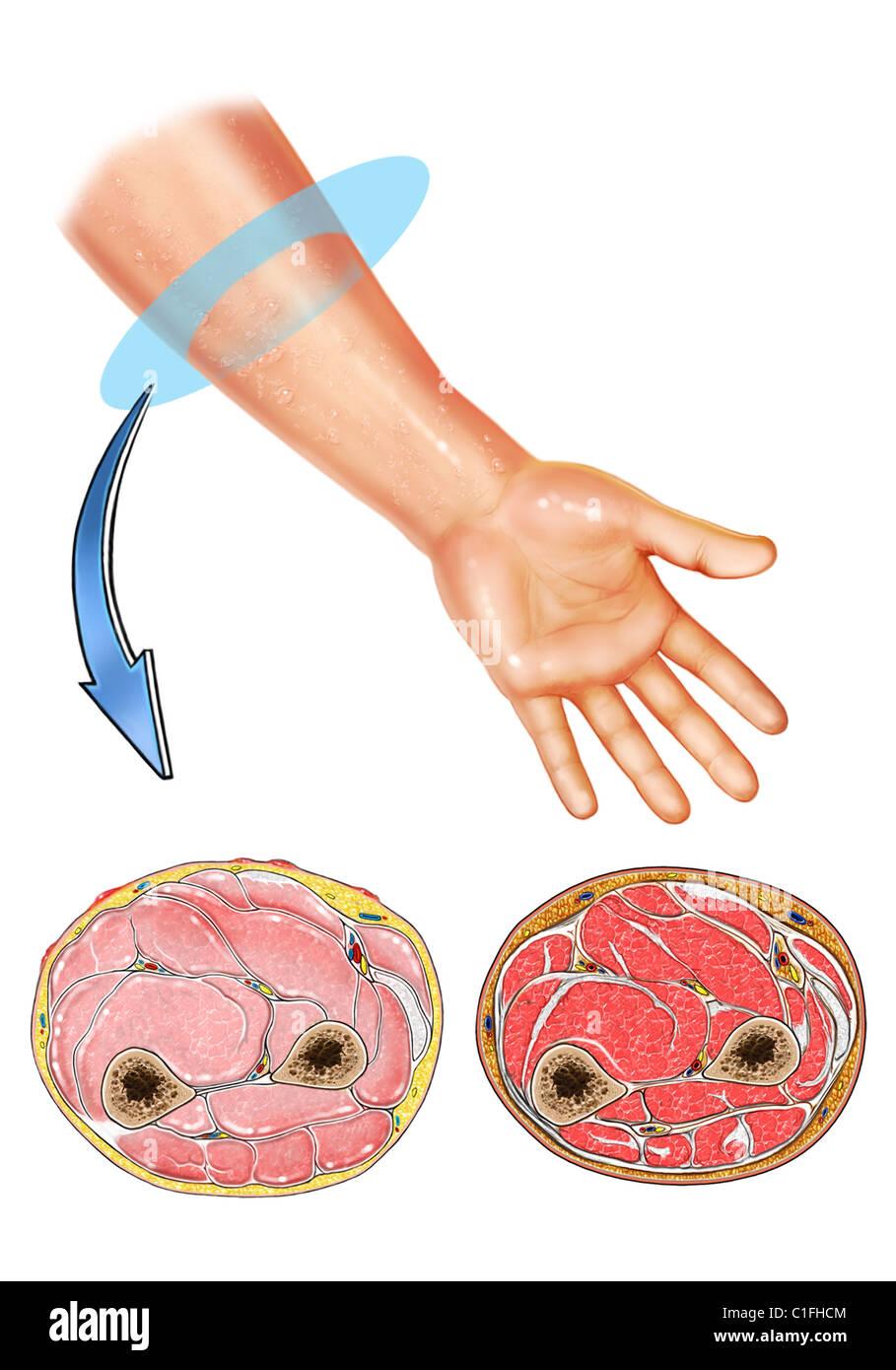 Diese medizinische Illustration zeigt die Muskeln des Unterarms. Cut ...
