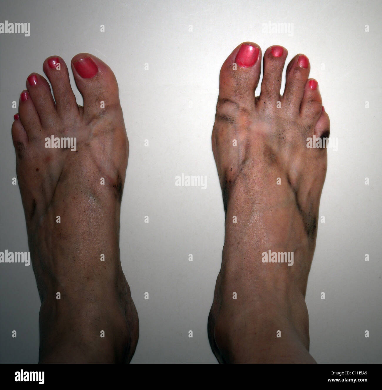 reife schmutzige Füße