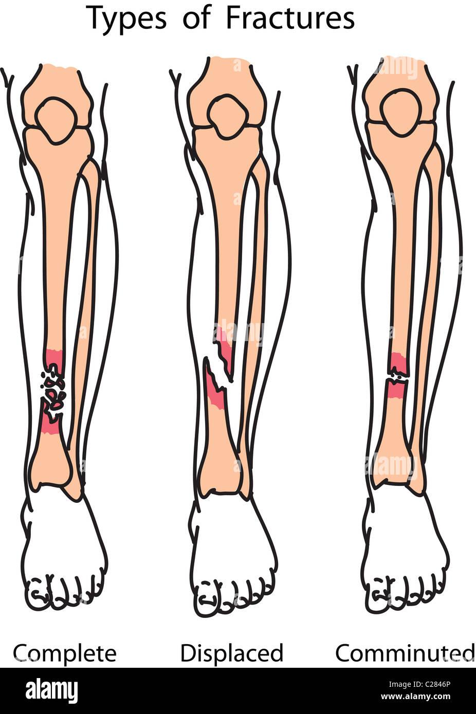 Arten von menschlichen Knochenbrüchen Abbildung Stockfoto, Bild ...