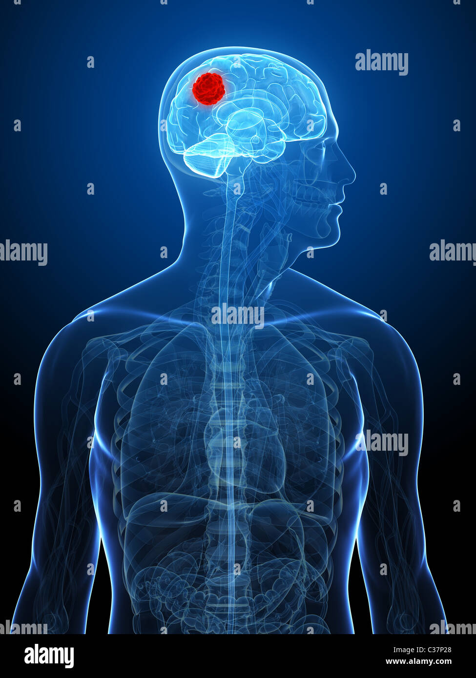 Brain Tumor Scan Stockfotos & Brain Tumor Scan Bilder - Alamy