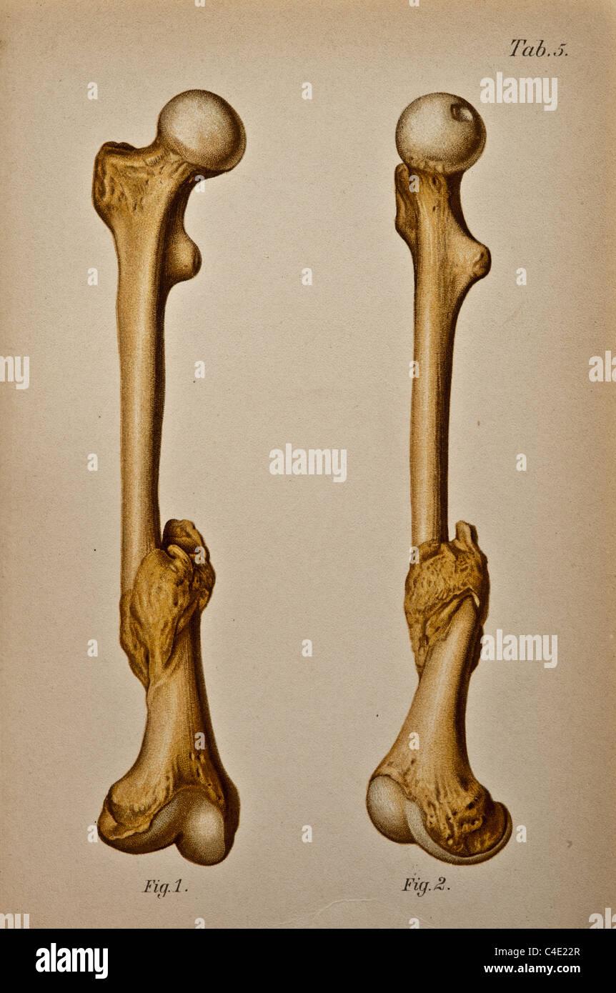 Berühmt Bilder Des Oberschenkelknochens Galerie - Anatomie Ideen ...
