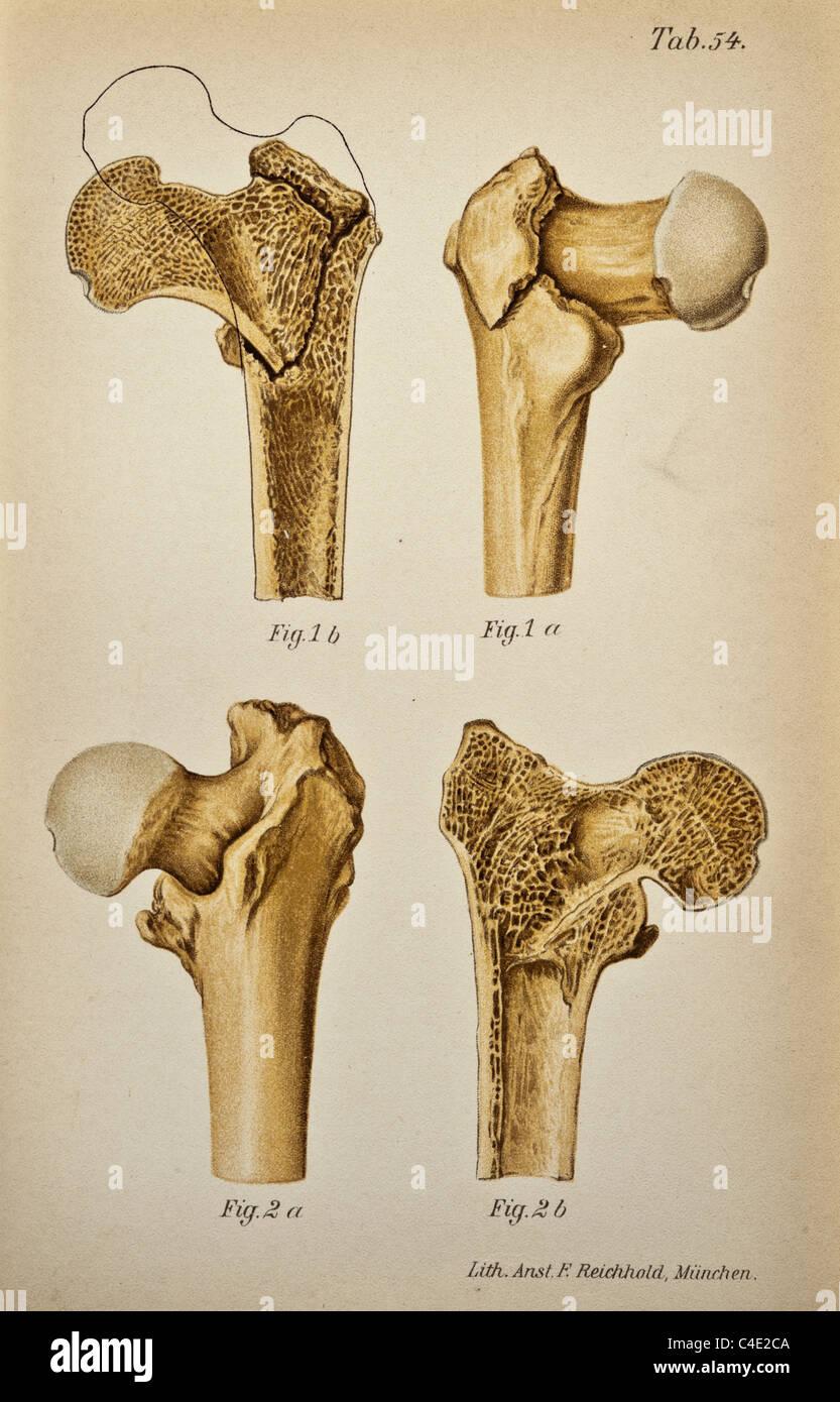 Großartig Hüftknochen Diagramm Fotos - Anatomie Ideen - finotti.info