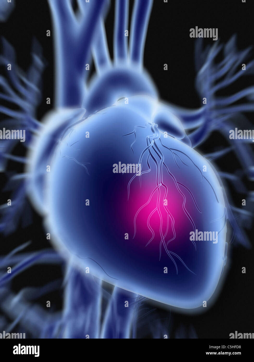 Heart attack Stockbild