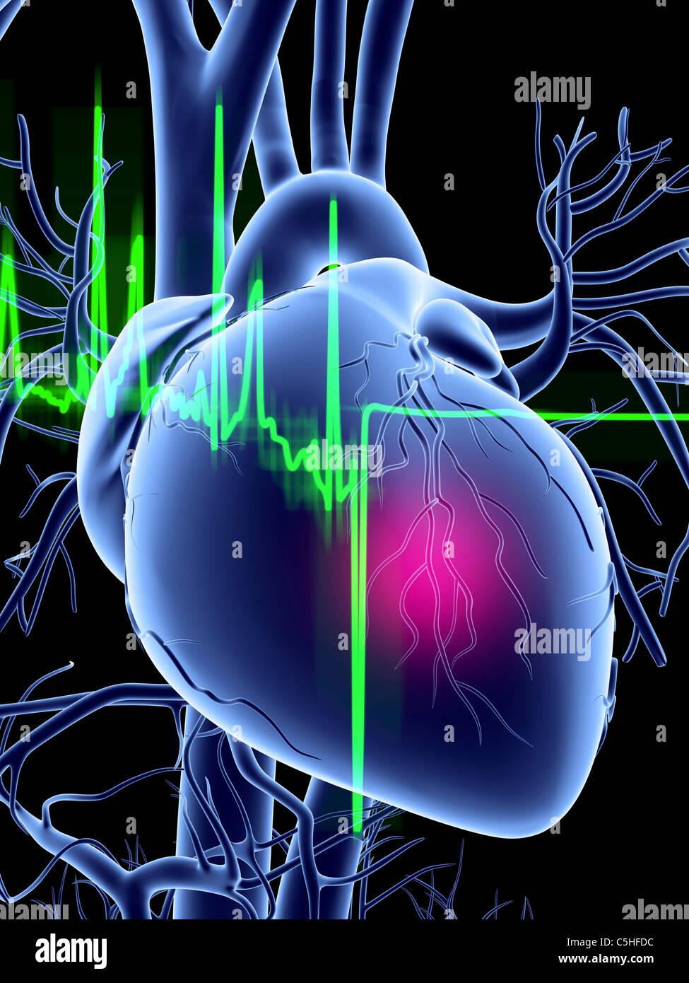 Herzinfarkt und EKG Spur Stockbild