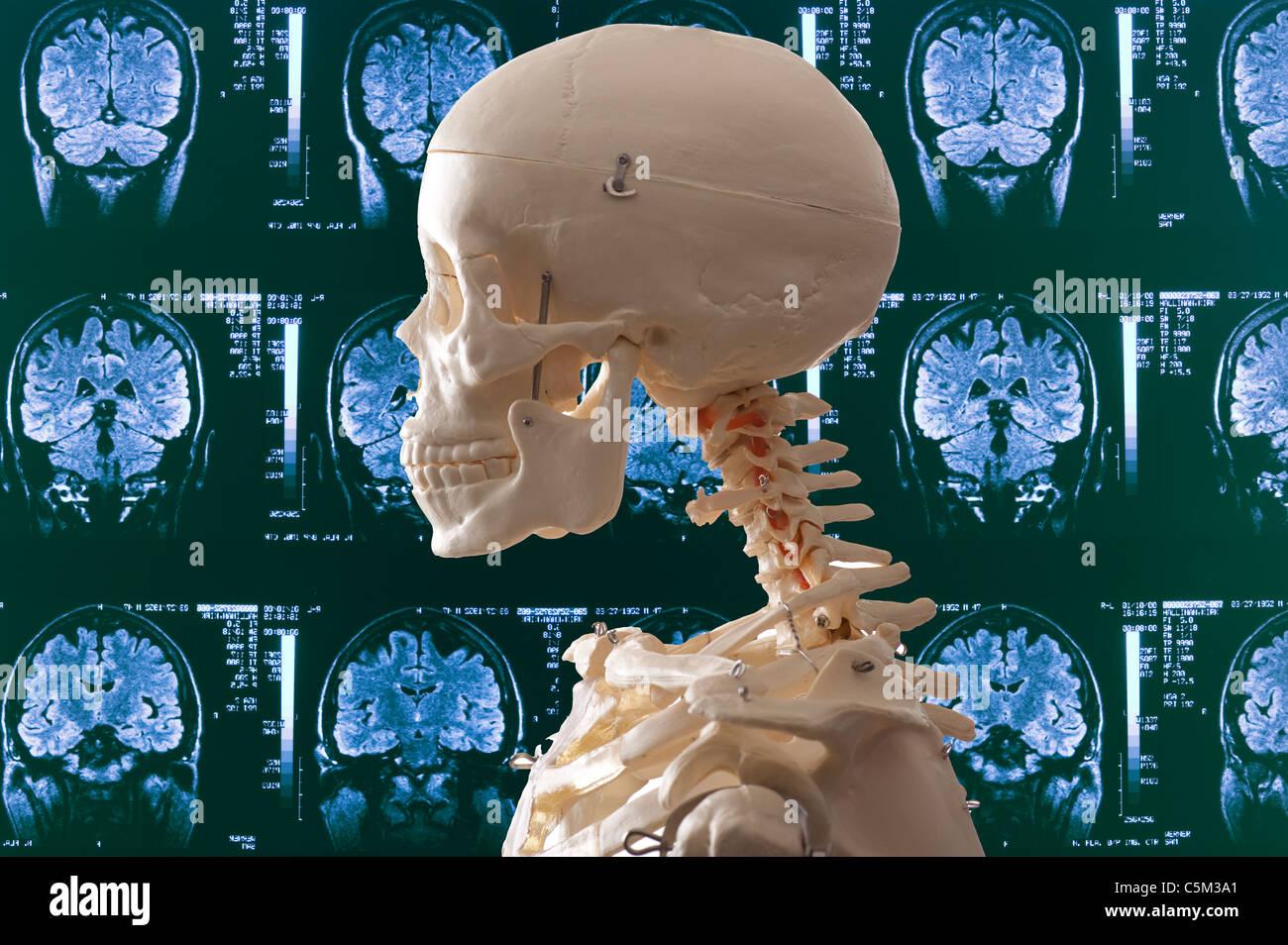 menschliches Skelett und medizinischen MRT-Hintergrund Stockfoto
