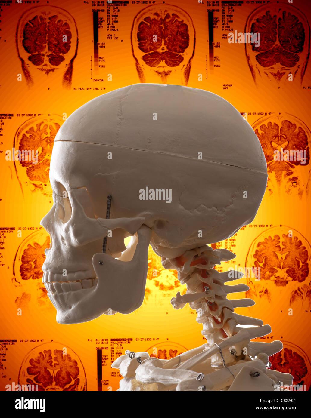 Konzept-Bild menschlicher Schädel und MRI-Hintergrund Stockbild