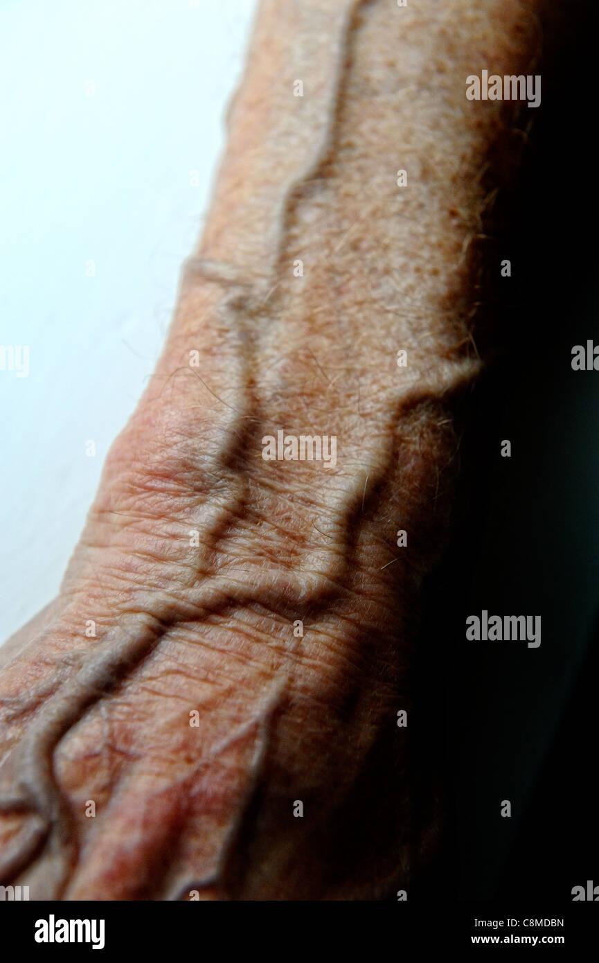 Venen am Arm 82 Jahre alten männlichen England-Vereinigtes ...