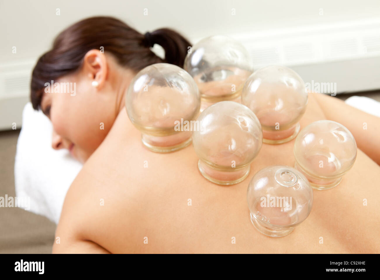 Akupunktur-Feuer Schröpfen Detail am Rücken Frau Stockbild