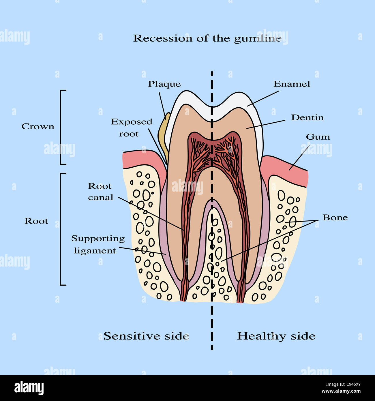 Anatomic Root Of The Tooth Stockfotos & Anatomic Root Of The Tooth ...