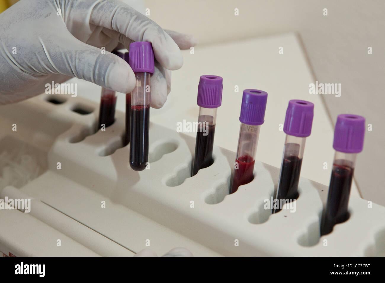 Ein Labor-Mitarbeiter testet dem Blut des Patienten für die CD4-Zellzahl auf eine HIV / AIDs-Klinik in Ibenga, Stockbild