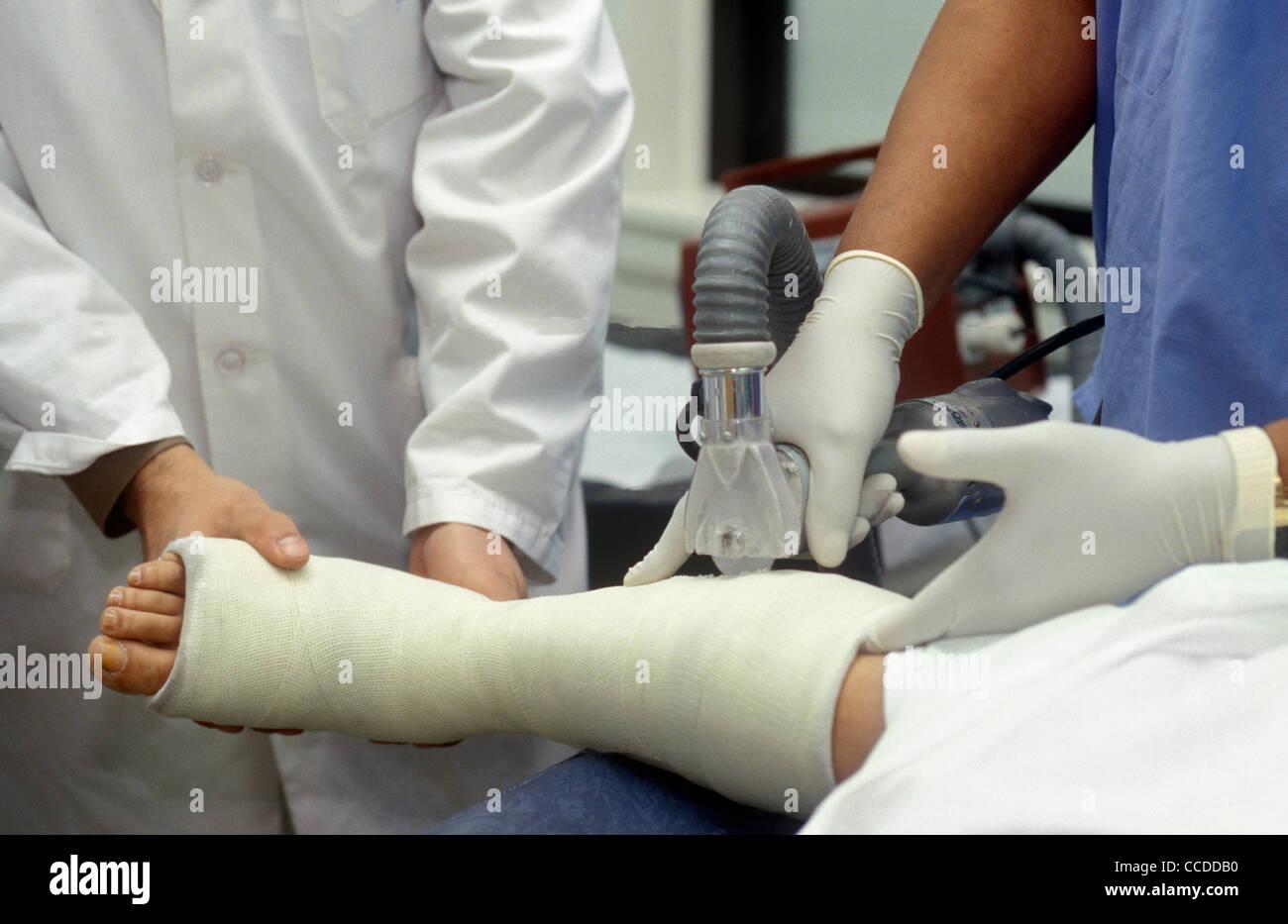 Orthopädische Ärzte entfernen eine Besetzung von einem Patienten mit einem gebrochenen Knochen. Stockbild