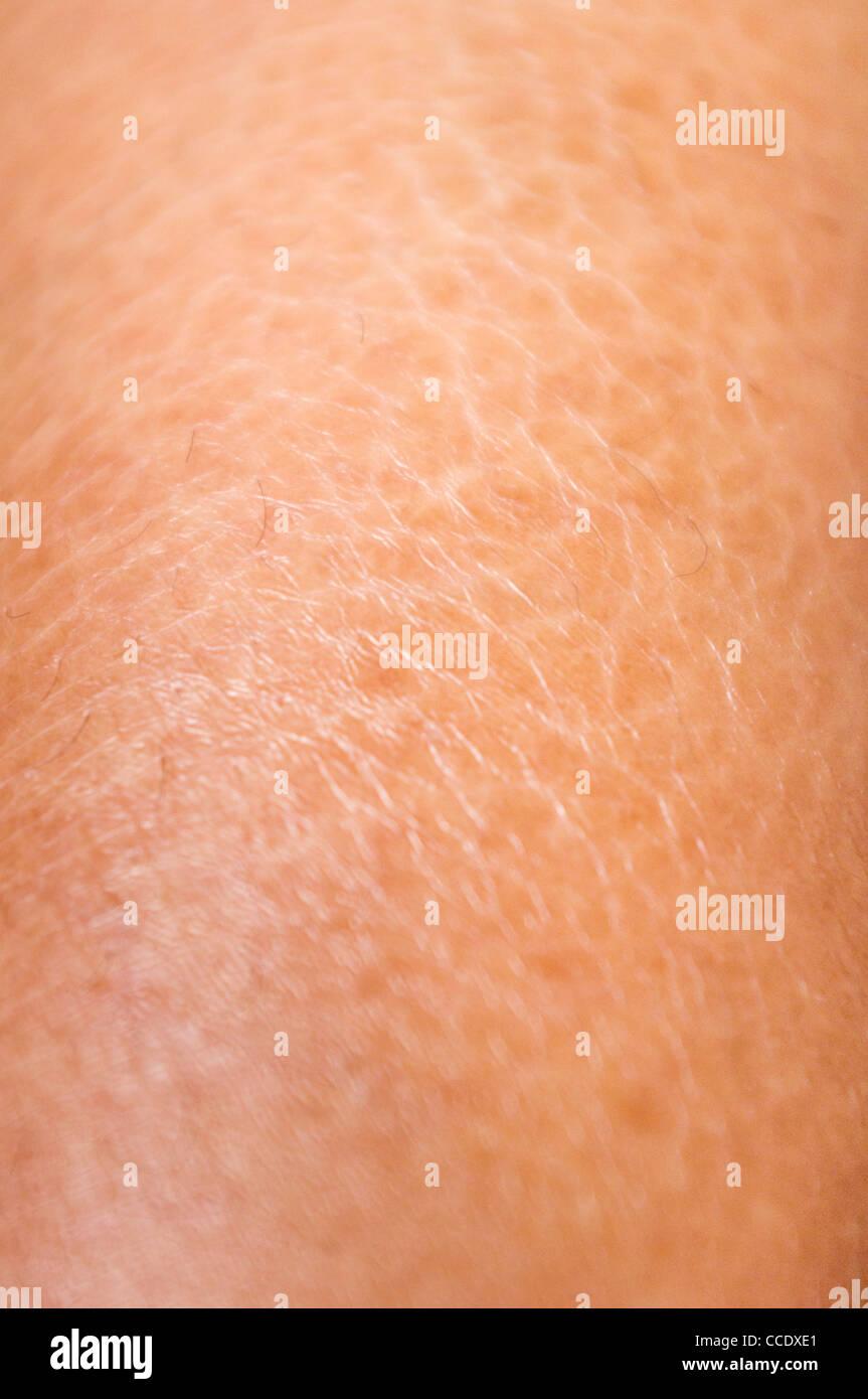 Schuss Von Trockener Und Rissiger Haut Texturen Auf Beinen Hautnah
