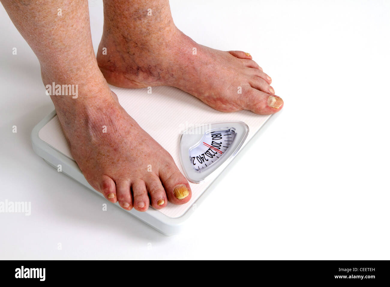 Man feet and toes stockfotos man feet and toes bilder seite 2 alamy - Pilz im badezimmer ...