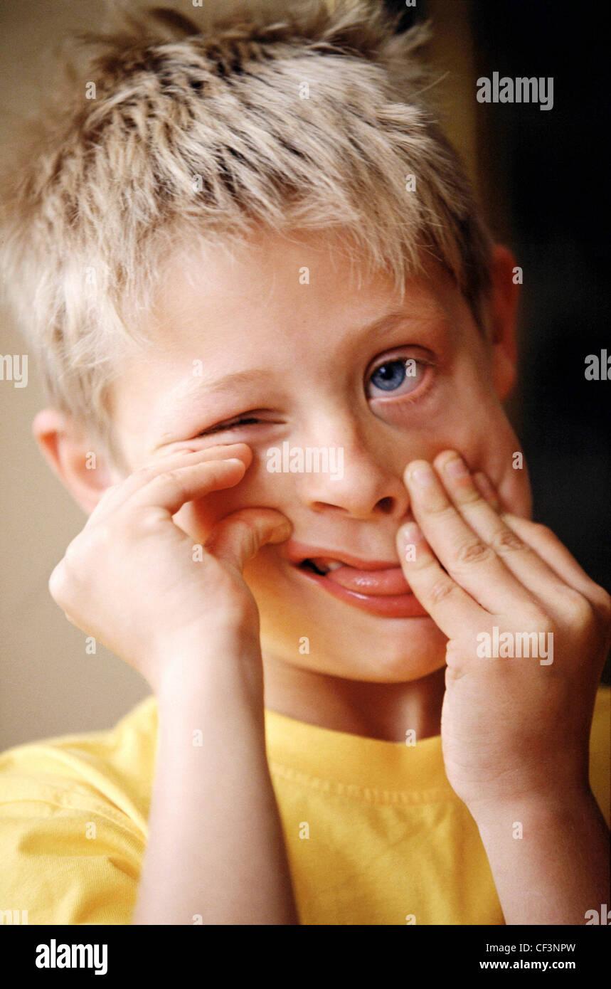 Gelbe Zunge Kind