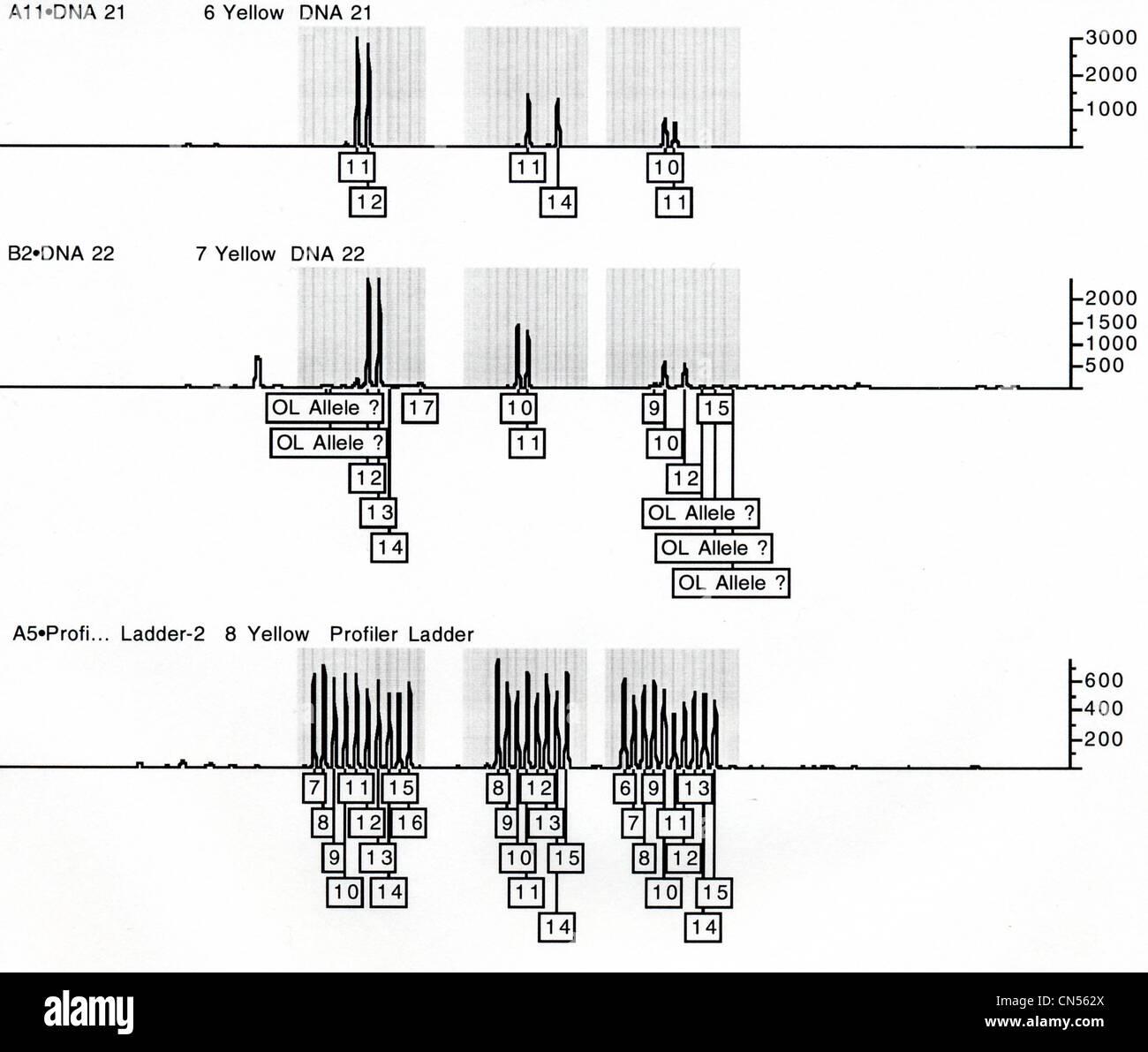 DNA-Analyse der forensische Proben mit einem Kapillar-Elektrophorese ...