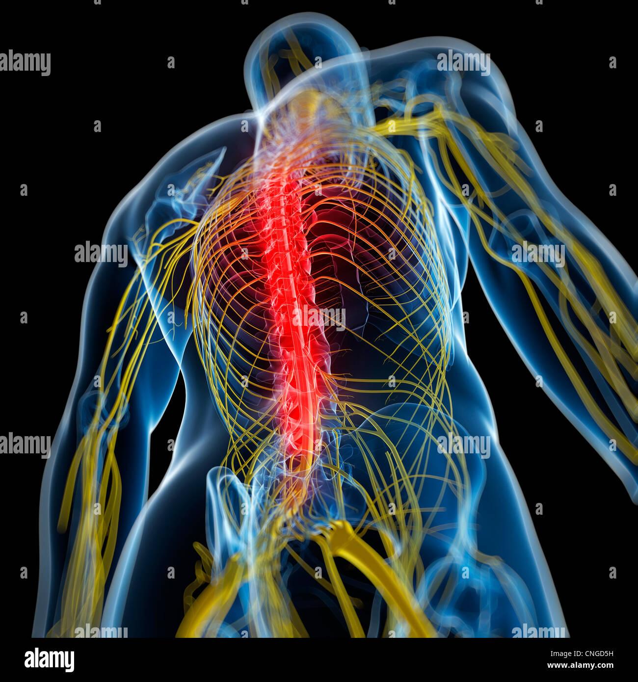 Schmerzen im Rücken konzeptuellen KunstwerkStockfoto