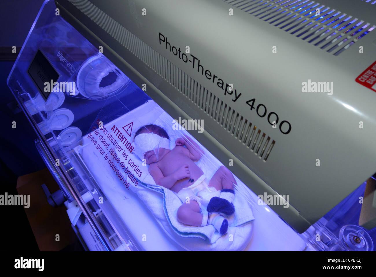 Ein neugeborenes Baby mit Phototherapie für Gelbsucht Stockbild