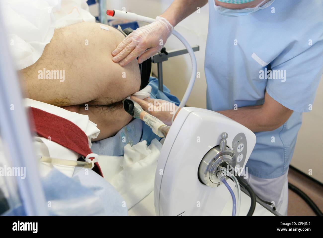 Biopsia prostatei