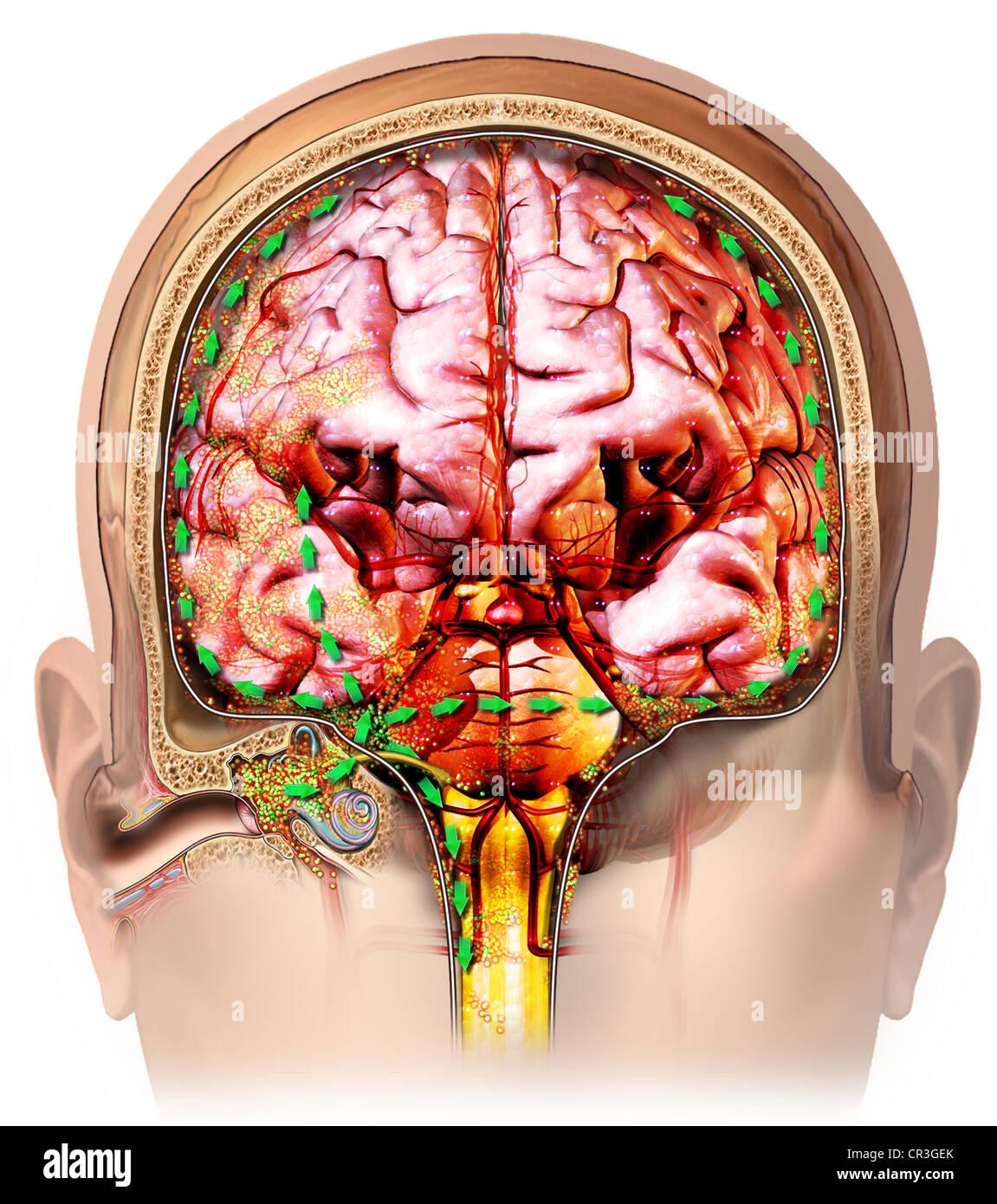 Koronale Ohr und Gehirn Anatomie mit Ausbreitung der bakteriellen ...