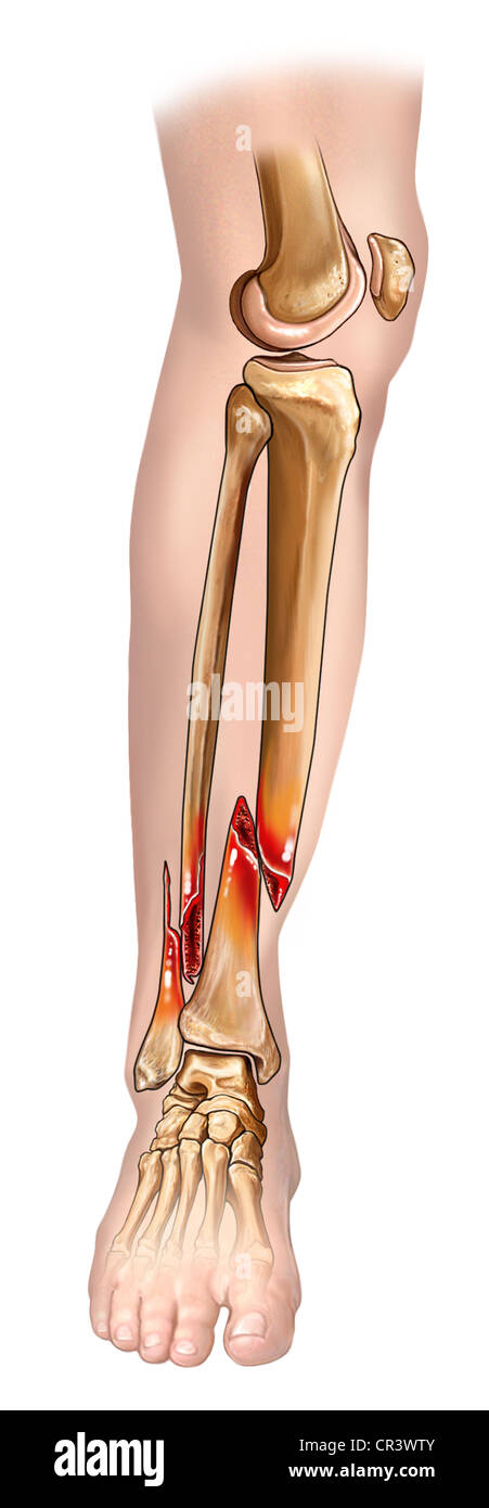 Fracture Of Tibia And Fibula Stockfotos & Fracture Of Tibia And ...