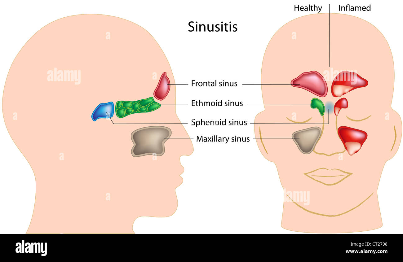 Nebenhöhlen des menschlichen Kopfes und Sinusitis Stockfoto, Bild ...