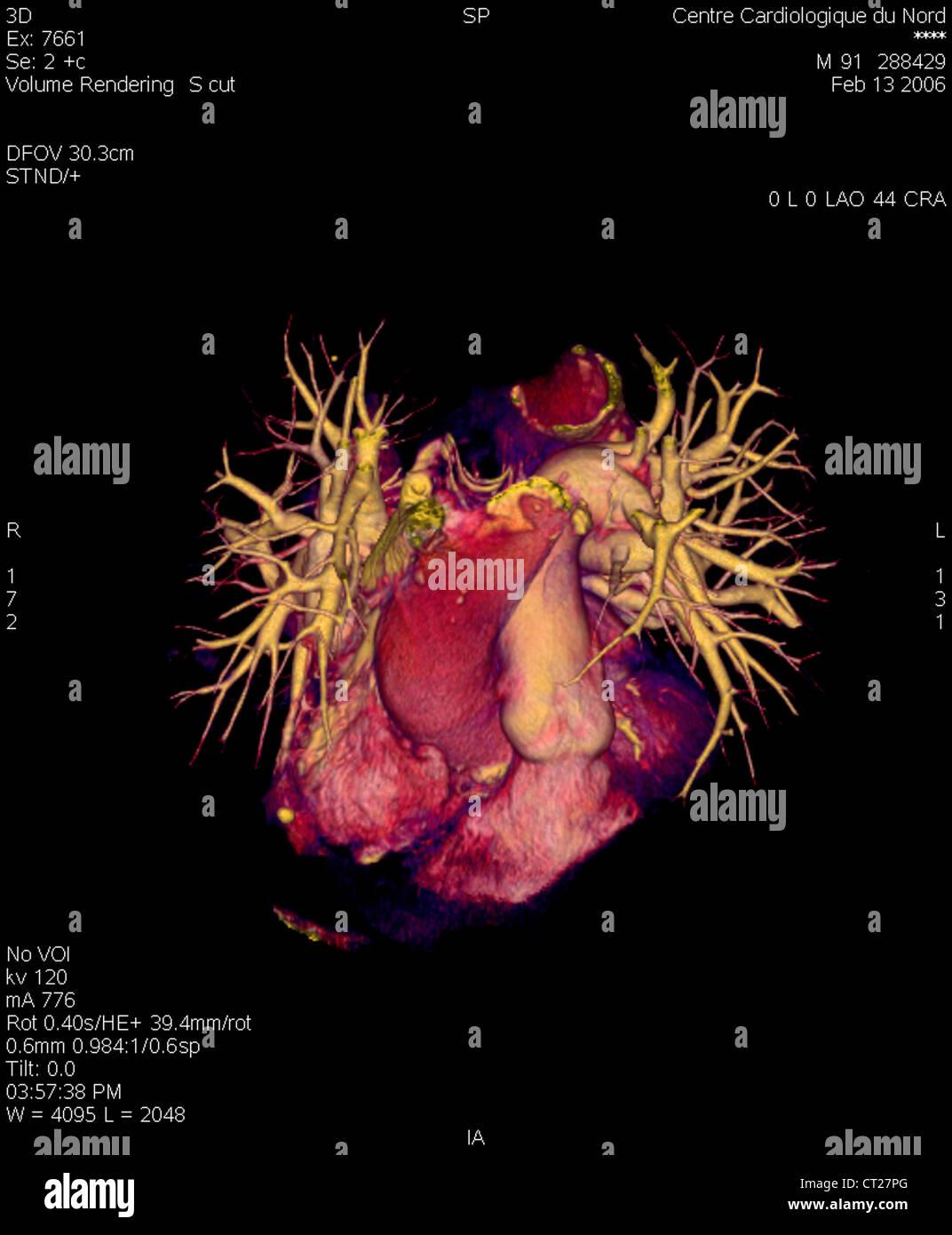 Erfreut Lungenarterie Zweige Anatomie Galerie - Anatomie Von ...