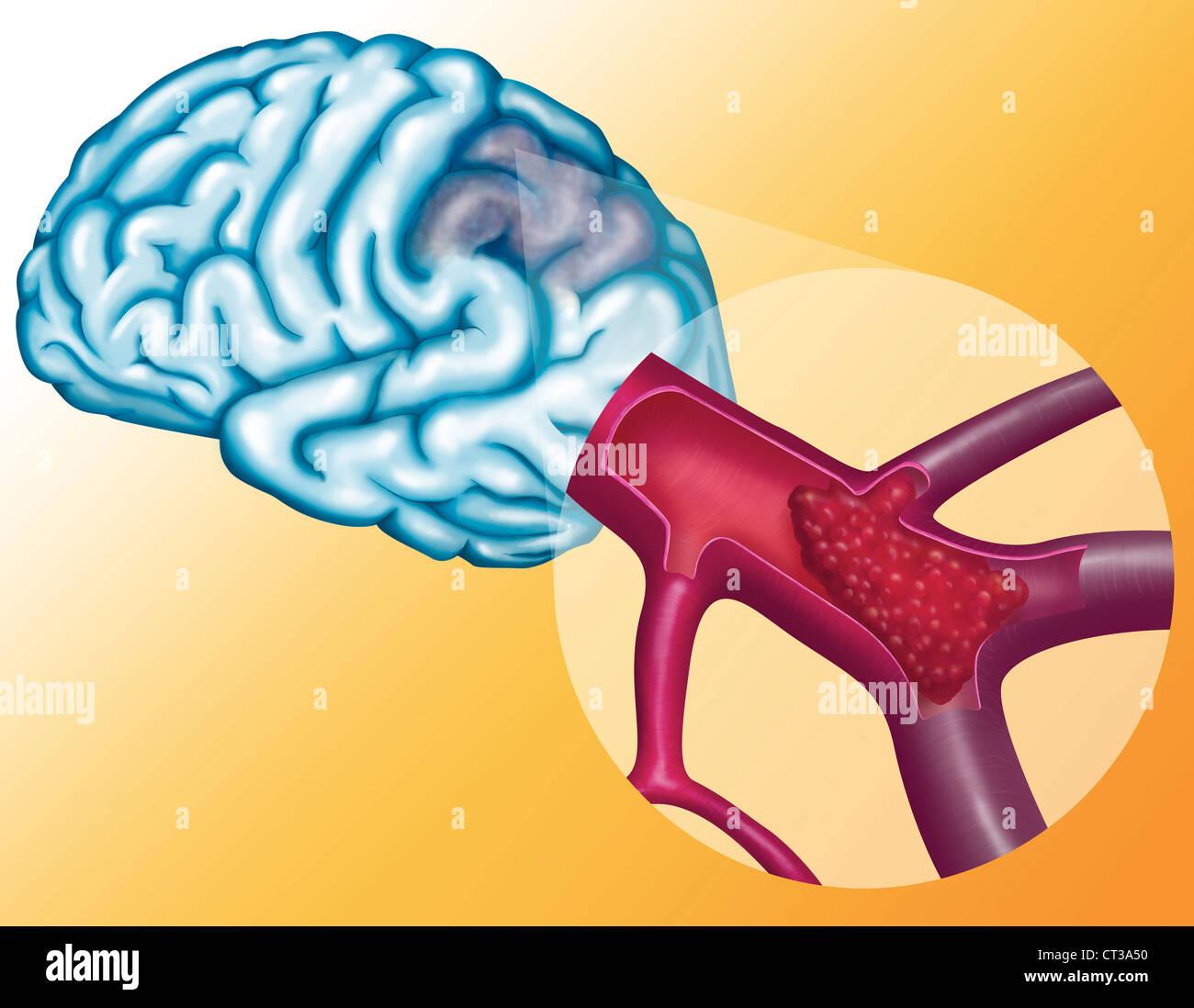 Arterial Thrombosis Stockfotos & Arterial Thrombosis Bilder - Alamy