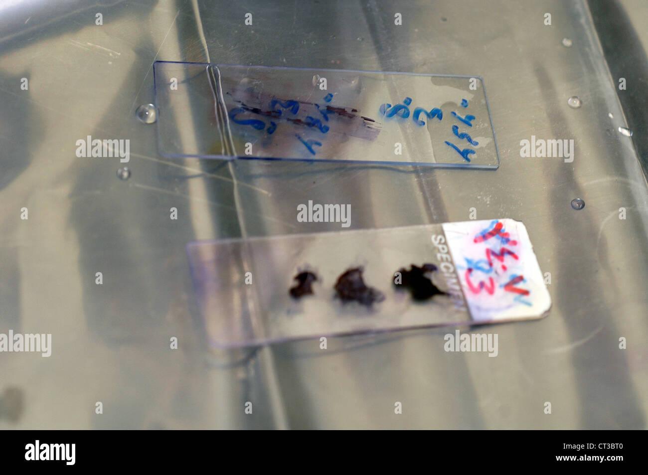 Zwei Folien der verschiedenen bakteriellen Probe bereit zur Analyse. Stockbild